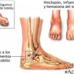 Une lésion de la cheville droite prend du temps à se cicatriser.
