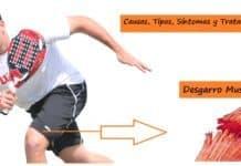 Tratamiento y Causas de Desgarros Musculares