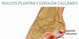 Fascitis Plantar y Espolon Calcaneo