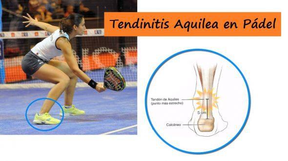 Tendinitis Aquilea, Lesión en el Tendón de Aquiles ¿Cómo curarla?